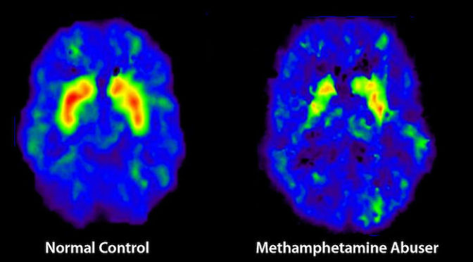 methamphetamine brain scan